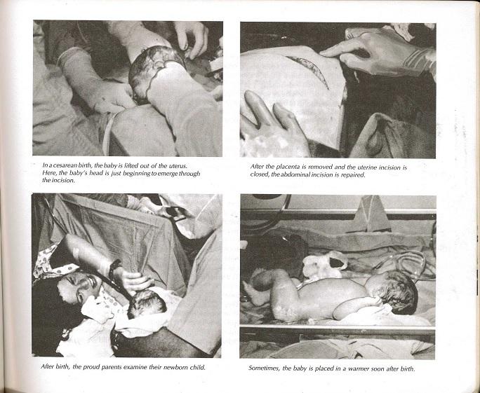 Childbirth photos