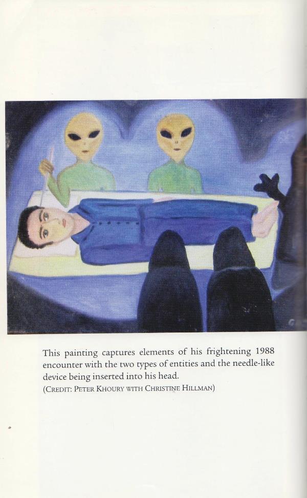 alien surgery